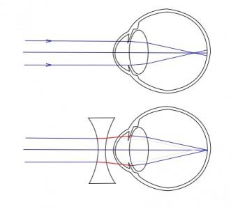 Un oeil myope, puis un oeil myope corrigé par une lentille divergente.