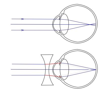 99405d942d87f2 Un oeil myope, puis un oeil myope corrigé par une lentille divergente.