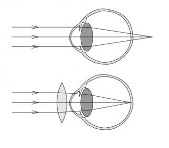 Un oeil hypermétrope, puis un oeil hypermétrope corrigé par une lentille convergente.
